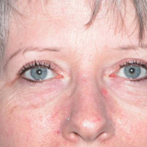 Facial Eyelid Post 2