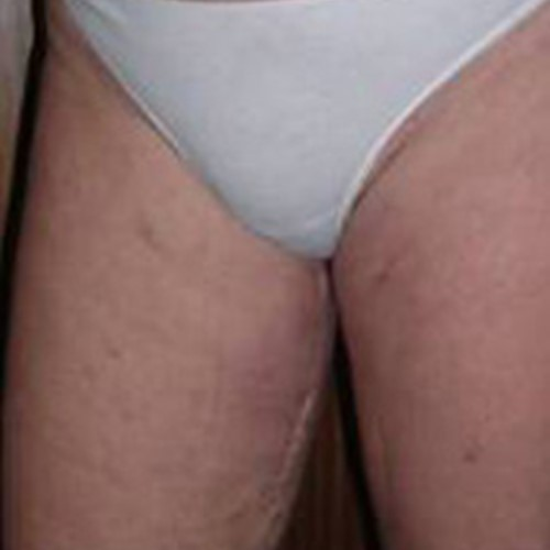 Thigh lift Post 2.jpg