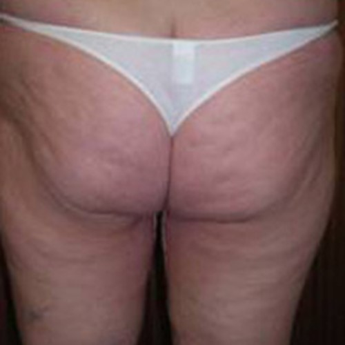 Thigh lift Post 3.jpg