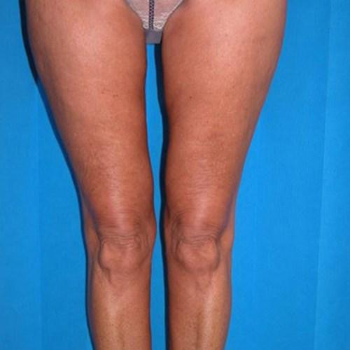 Body Contouring - Thigh Lift | Plastic Surgeon - Surrey | Mark Soldin