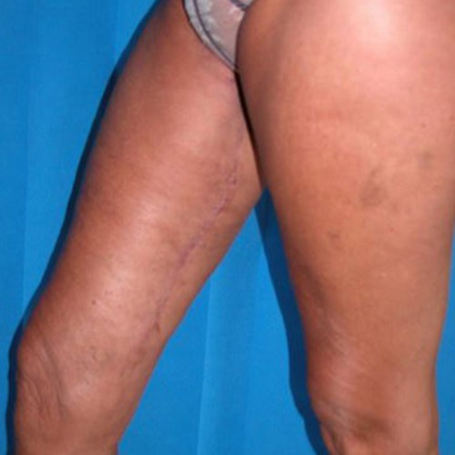 Thigh lift Post 6.jpg