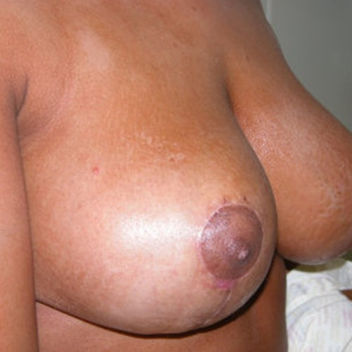 Breast Reduction Post1