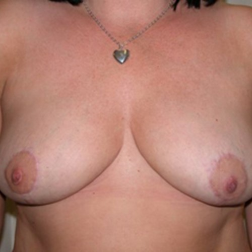Breast Reduction Post2