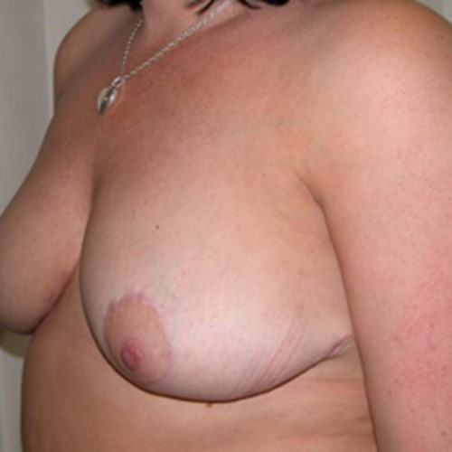 Breast Reduction Post3