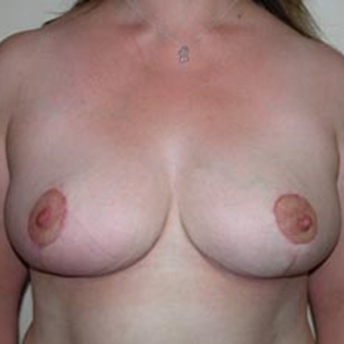Breast Reduction Post4