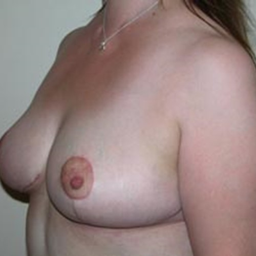 Breast Reduction Post5