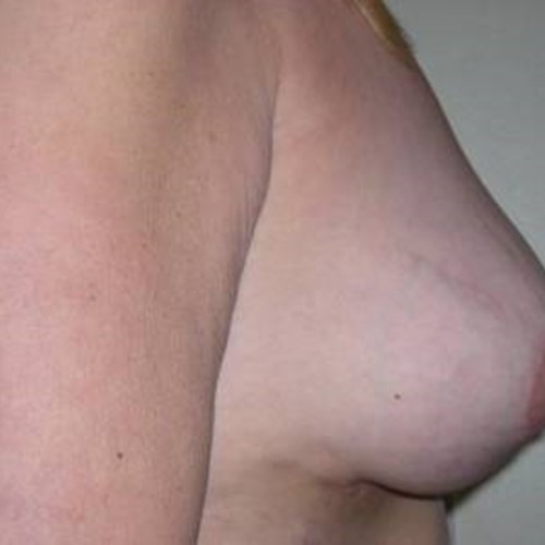 Breast Surgery Post 3.jpg
