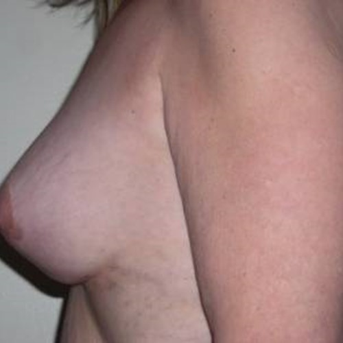 Breast Surgery Post 4.jpg