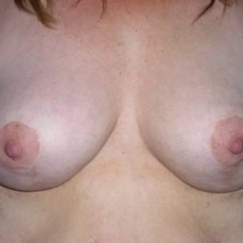 Breast Surgery Post 5.jpg