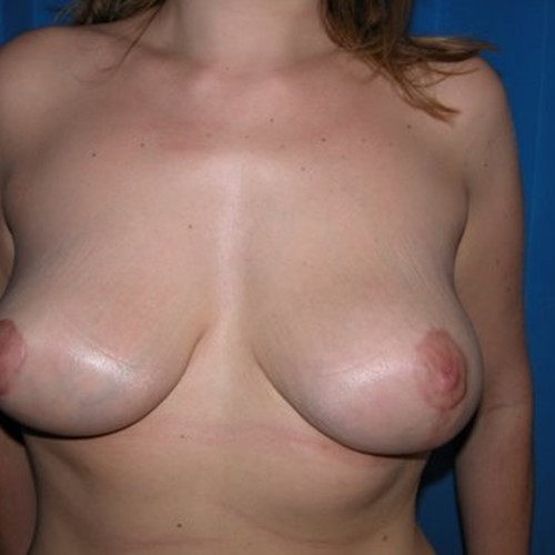 Breast Surgery Post 7.jpg