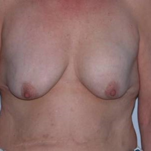 Breast Surgery Pre 4.jpg
