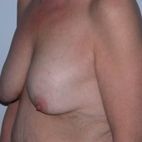 Breast Surgery Pre 6.jpg