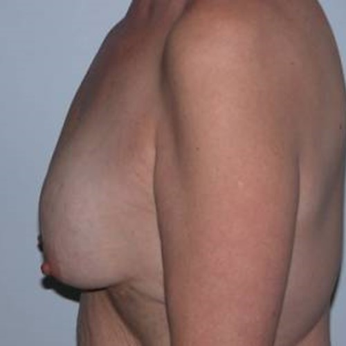 Breast Surgery Pre 7.jpg