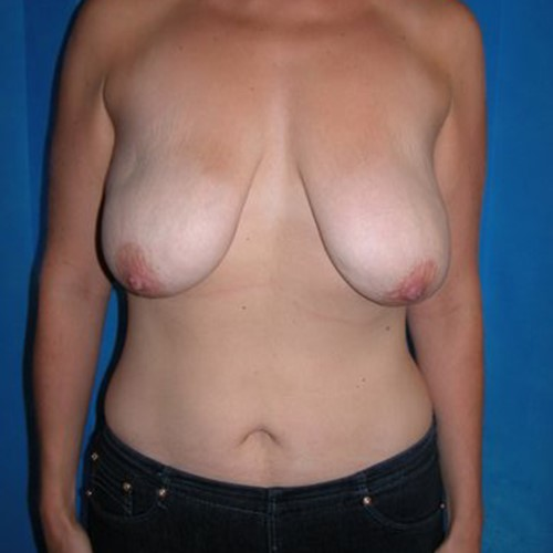 Breast Surgery Pre 8.jpg