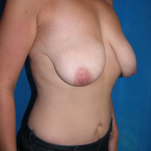 Breast Surgery Pre 9.jpg
