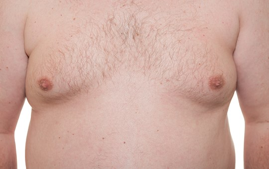 Cosmetic Breast Surgery - Gynaecomastia (male breast enlargement)